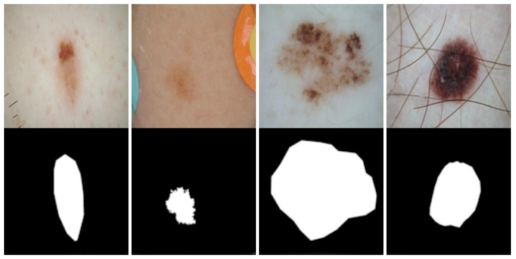 Task 1: Lesion Boundary Segmentation | ISIC 2018